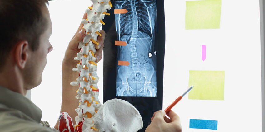 doctor comparing a model spine with an x-ray of a spine with sticky notes and flags on the x-ray board